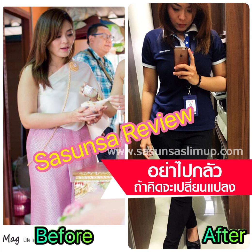 Sasunsa ลดน้ำหนัก 10 กิโล ใน 1 เซ็ท